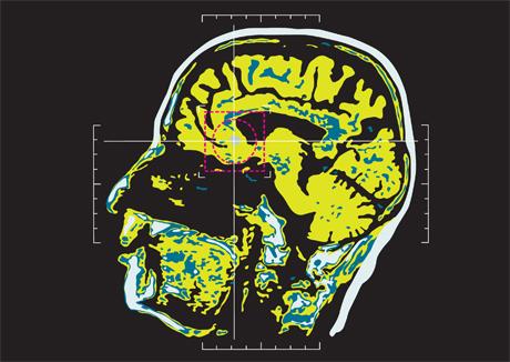 Neuromarketing – snart stueren?