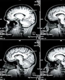 Den købende hjerne – hvad kan hjerneforskningen bringe?
